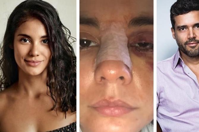 Actor de 'La Piloto' golpea brutalmente a una actriz; la dejó incapacitada por 5 meses (+VIDEO)